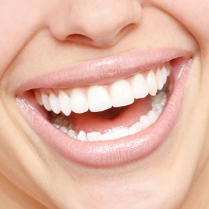 Teeth Whitening Treatment in Delhi